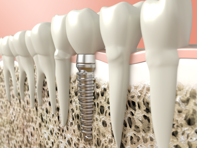 Knochenaufbau: Stabiles Fundament für Zahnimplantate | MKG Nürnberg