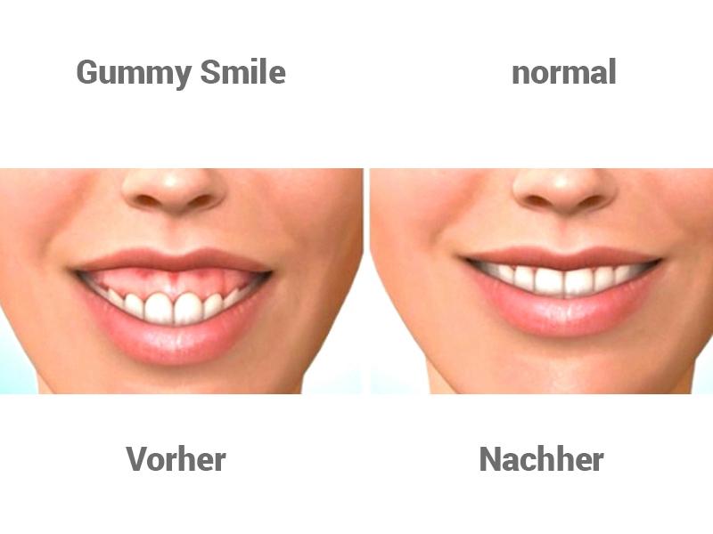 Nachher zahnfleischtransplantation vorher Typveränderung vorher