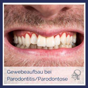 MKG-Chirurgie-Dr-Zikarsky-Nürnberg-Geweberegeneration-bei-Parodontitis-Parodontose